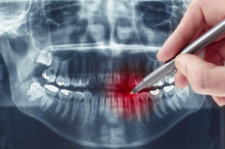 pełna diagnostyka 3D - tomograf NewTom 5G #tomograf #obraz_3D #dentysta #stomatolog #implanty #ortodoncja #diagnostyka