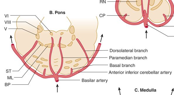 paramedian basilar artery branches - Google Search