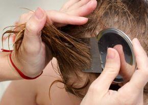 Descubre varias soluciones naturales para combatir los piojos sin usar químicos agresivos. ¡No te las pierdas!