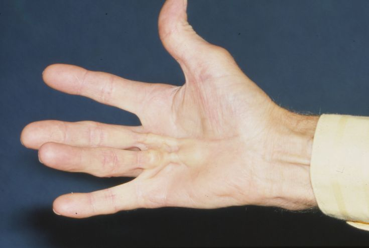 dupuytrens contracture the claw hand disease essay New hope for dupuytren's contracture: jab that cured a full-on deformity known as claw hand or dupuytren's dupuytren's disease affects an estimated one.