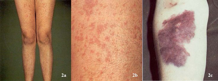 Vitamin K deficiency is a form of avitaminosis resulting from insufficient vitamin K1 or vitamin K2 or both. Description from imgarcade.com. I searched for this on bing.com/images