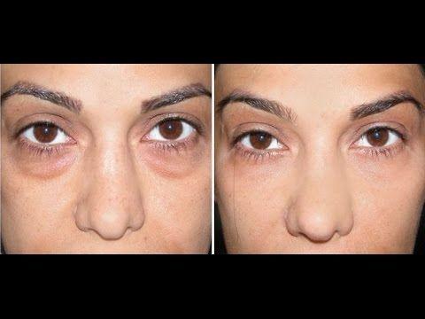 Articles - Elle frotte le bicarbonate de soude sur ses joues 3 fois par semaine, les résultats sont étonnants! (VIDEO EN PAGE 2) - Hit the News