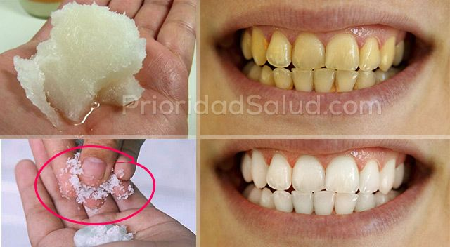 ¿Sueñas con dientes perfectamente blancos, sanos y sin caries o sarro? Esta la mejor combinación para reducir la placa y blanquearte los dientes naturalmente.\r\n[ad]\r\nHacer un blanqueamiento en el dentista puede costar relativamente caro y los productos utilizados para blanquear los dientes tienen muchos compuestos químicos ofensivos y generalmente no son eficaces.\r\n\r\nAfortunadamente, esta combinación de dos productos naturales altamente eficaces blanquea tus dientes…