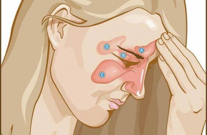 Evo kako da otpušite sinuse za 30 sekundi!