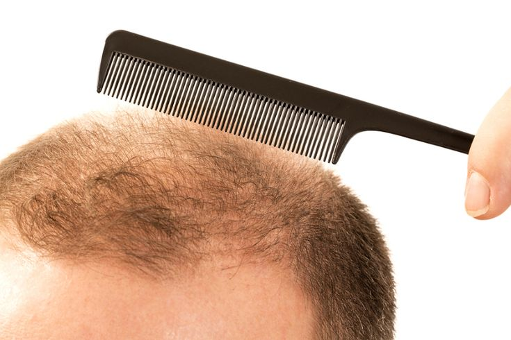 Revive Hair and skin clinic is one of the best hair transplant agency in the United Kingdom, We provide FUE surgery to solve hair loss problem, come and get the best  result from our experienced staff.