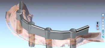 CAD-CAM Steg gefräst für Zahnimplantate
