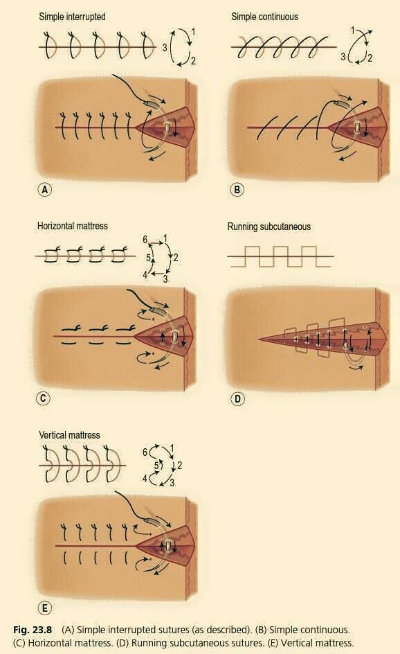 Surgical Sutures                                                                                                                                                                                 More