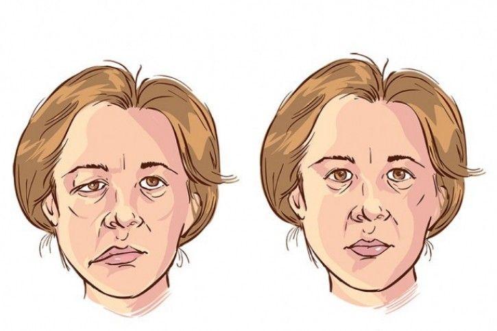 Rehabilitacja przy porażeniu nerwu twarzowego