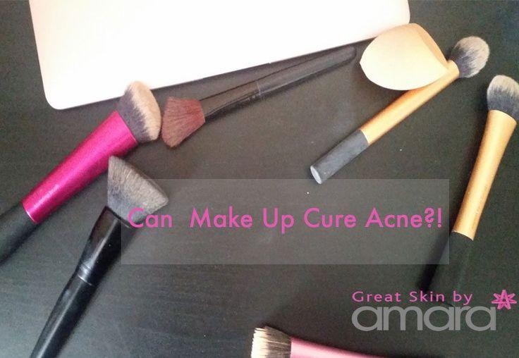 Acne-Treatment-Dublin-