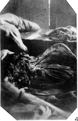Another photo of Mary Kelly's butchered body, as it was discovered in Miller's Court.