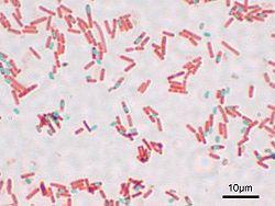 Bacillus subtilis Spore.jpg
