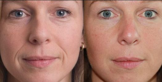 Before and after juvederm wrinkle fillers ~SculptMD - 514.728-5783