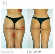 Cellulite solution Endermologie -  Ella Rouge Beauty Skin Care and Laser Clinics Australia