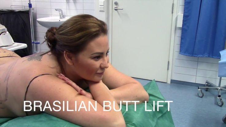 Lähikuvassa #rasvansiirto pakaroihin. Toimenpide on nimeltään #brazilianbuttlift eli #BBL.