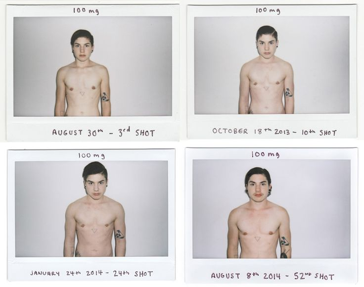 male to female transition photos - Google Search