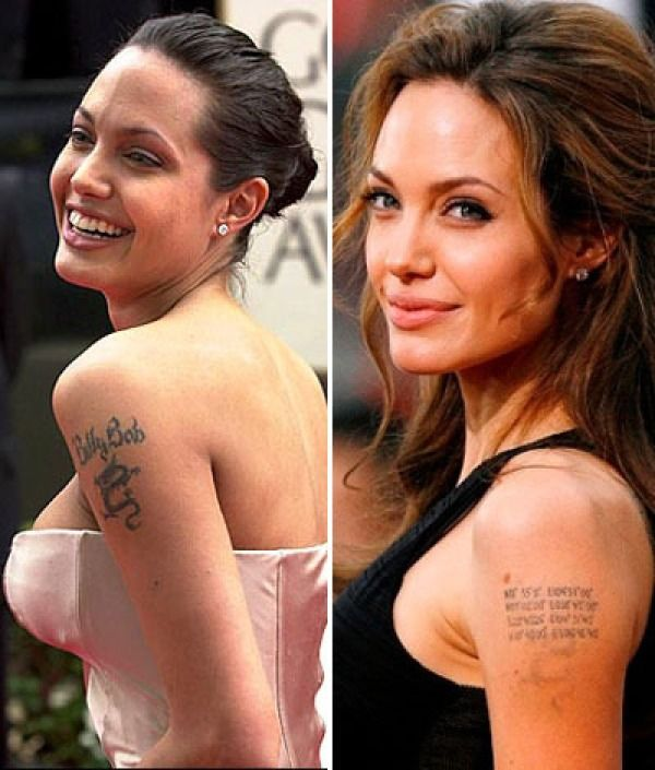 Why tattoo removal is so popular among hollywood for Looking glass plastic surgery tattoo removal