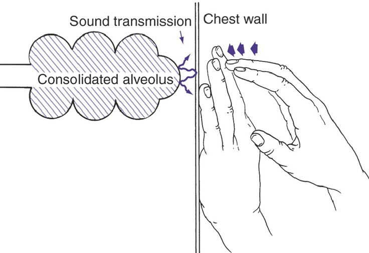 alveolar consolidation - gives a short, dull, or flat percussion note: Flats Percussion, Physics Diagnosi, Alveolar Consolidation, Percussion Note, Nursing Schools, Nursing Assessment