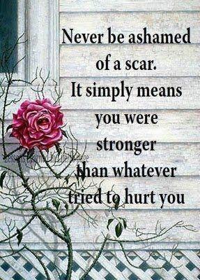 Een litteken als teken van kracht.