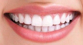 blanchiment-dent-naturel-lotus-05