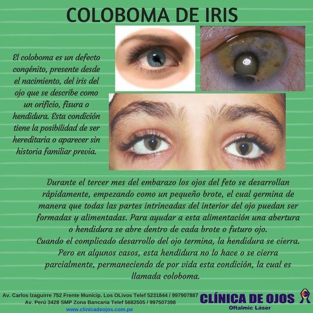Clínica de Ojos Oftalmic Láser: COLOBOMA DE IRIS