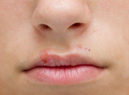 Como frenar un herpes labial en una noche con este sencillo truco natural El herpes labial es una infección que se produce por el virus del herpes simple, que es un virus muy contagioso y que se propaga fácilmente al tocar una llaga activa.
