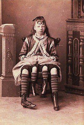 1900's Carnival Sideshow - 4 Legged Girl - Postcard Poster