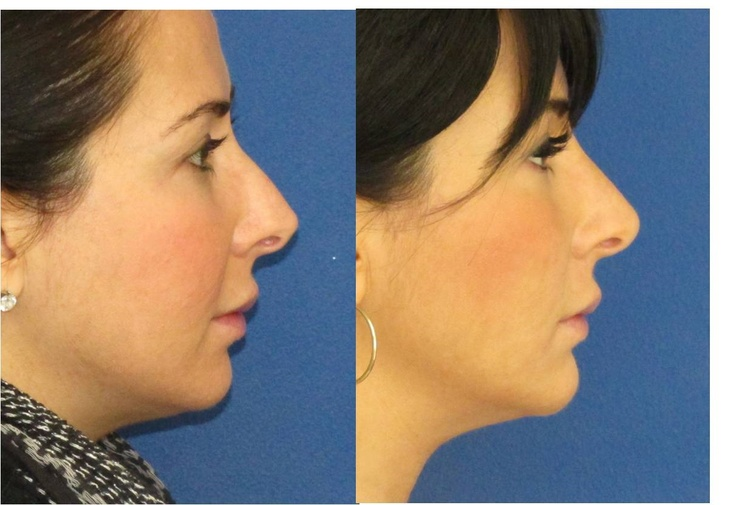 Nonsurgical nose job and chin augmentation with filler.