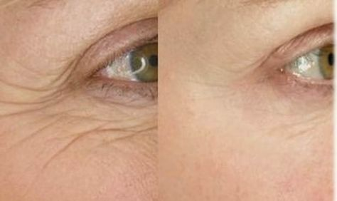 Home Remedies for Wrinkles Removal. How to Get Rid of Wrinkles? Wrinkles Treatment. Cure Wrinkles Fast. Remove Wrinkles Naturally. Avoid Wrinkles at Home.