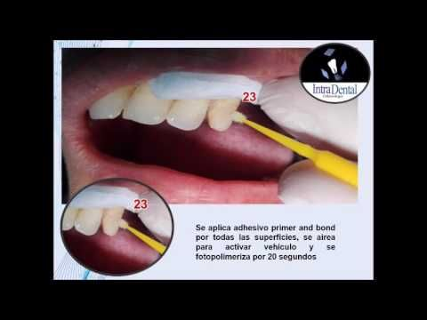 corona diente 23 en resina