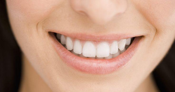 Cómo arreglar una separación de dientes sin aparatos. La separación entre los dientes, o diastema, aparece comúnmente entre los dientes frontales superiores. Algunas personas sienten que esa separación le agrega personalidad a su aspecto y a otras les resulta poco atractivo y desean eliminar el espacio. Hay maneras de solucionar la separación entre los dientes sin la necesidad de usar aparatos.