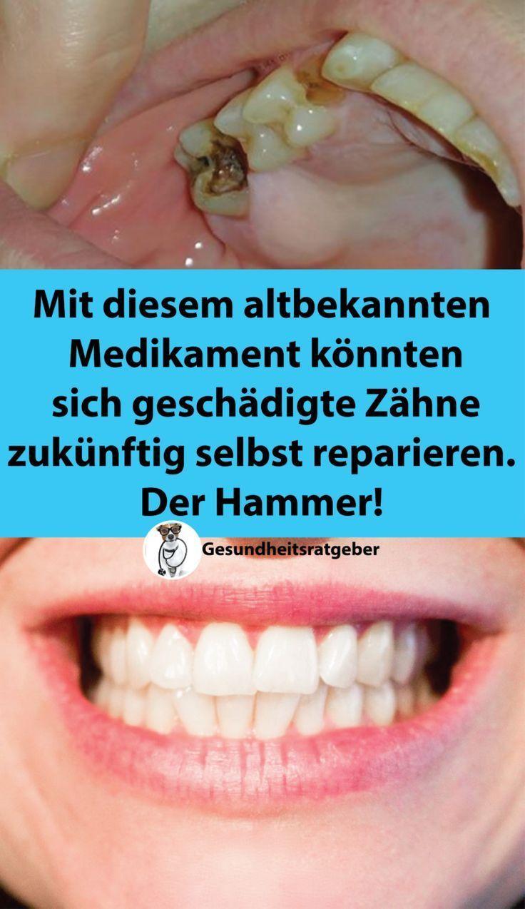 Mit Diesem Bekannten Medikament K Nnten In Zukunft Gesch Digte Z Hne Bekannten Diesem Geschadigte Konnten Medikament Zahn Oral Health Care Teeth Care Best Oral