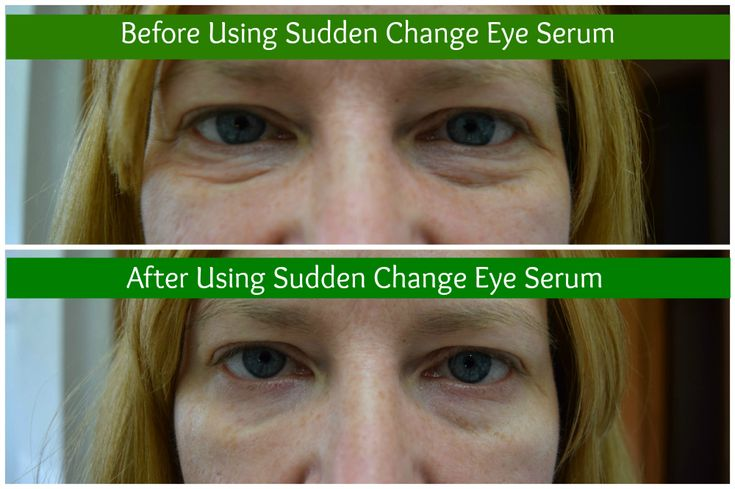 #ad I love Sudden Change Eye Serum! Click through to see more of my before and after photos using it! Sudden Change Eye Serum Review. #‎InstantRetouchwithSuddenChange‬