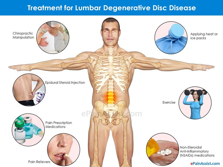 Natural Remedies For Degenerative Disk Back Pain