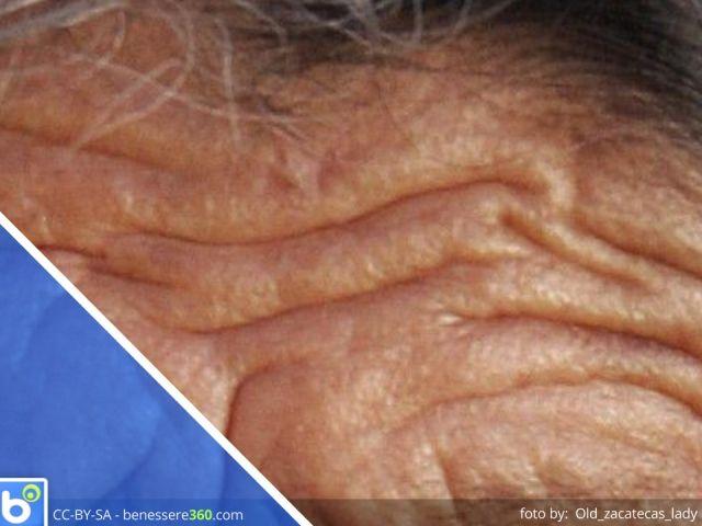 Invecchiamento cutaneo: cause e rimedi (creme e trattamenti per la pelle)