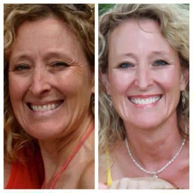 """Meet Deb James John. These are her results after ONE YEAR using Rodan + Fields … Here's what she said: """"I used many products such as Clinique ($238), Arbonne RE-9 ($330), Estée Lauder ($345) and several others. None have the corrective multi-med therapy that Rodan + Fields has. This is after Reverse ($167) and now I use Redefine ($176) and the eye cream ($54)."""" LOVE her results!! Want results? PM me!"""