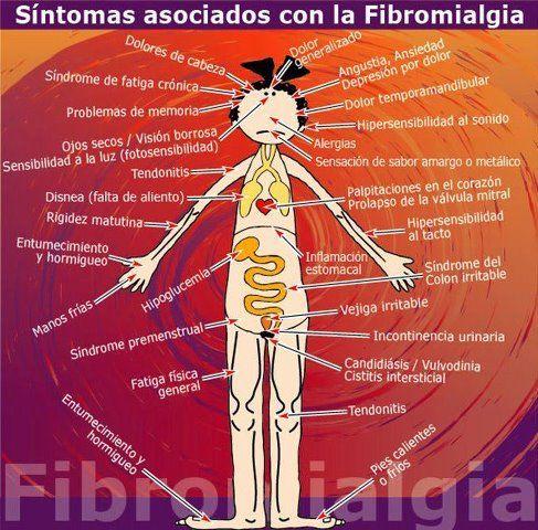 fibromialgia....