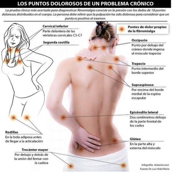 """La fibromialgia es un trastorno que causa dolores musculares y fatiga (cansancio). Las personas con fibromialgia tienen """"puntos hipersensibles"""" en el cuerpo. Estos se encuentran en áreas como: el cuello, los hombros, la espalda, las caderas, los brazos y las piernas. Los puntos hipersensibles duelen al presionarlos.  Las personas que padecen de fibromialgia pueden también tener otros síntomas, tales como:  - Dificultad para dormir -"""