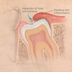 When wisdom teeth do not come in all the way, you cannot keep them clean with regular brushing and flossing. This is why an infection sometimes develops and the wisdom teeth have to be removed.