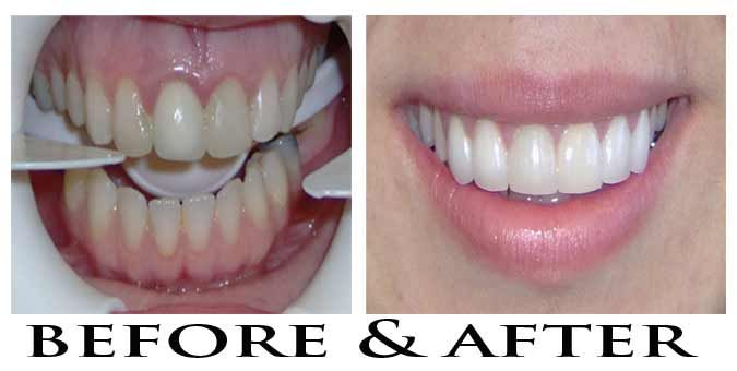 Most Dental Crowns Or Onlays Require Multiple Visits To