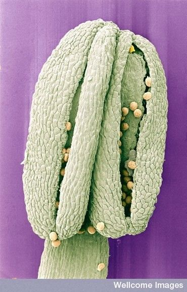 Image of the Week - December 11, 2017  CIL:39085 - http://www.cellimagelibrary.org/images/39085  Colorized scanning electron micrograph of pollen on the anther of a hedge mustard (Sisymbrium officinale) flower. This plant is reputed to have various medicinal properties including its ability to treat the loss of voice.  Anya Hurlbert  Attribution-NonCommercial-NoDerivs 2.0 UK: England & Wales (CC BY-NC-ND 2.0 UK)