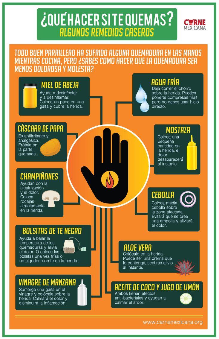 INFOGRAFÍA: Remedios contra las quemaduras