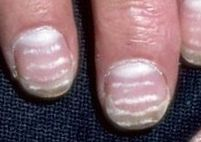 horizontal ridges in nails are a.......