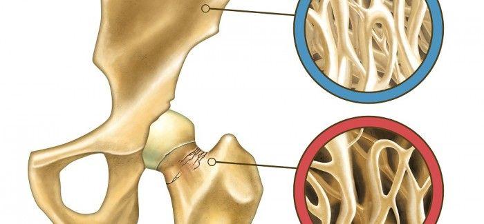 L'ostéoporose est une maladie de plus en plus courante qui affecte les os, et principalement les femmes. Venez découvrir nos conseils pour la prévenir !