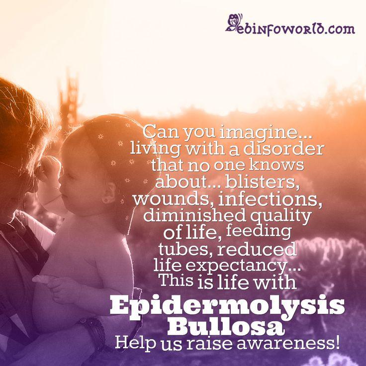 Epidermolysis Bullosa Awareness #EBawareness ebinfoworld.com