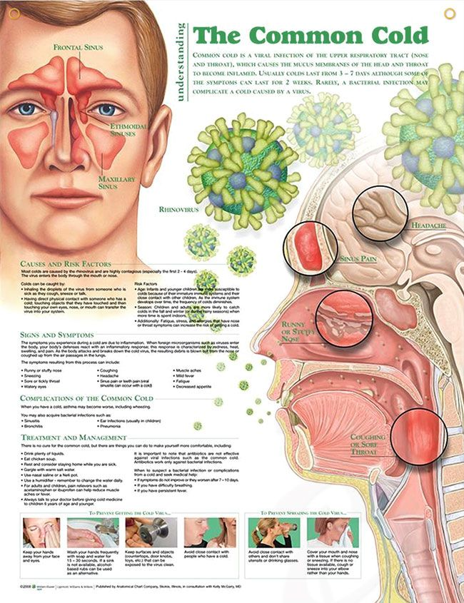 The Common Cold anatomy poster lists causes and risk factors and describes the role of rhinovirus for patients and medical students.