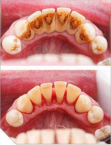 Oral professional hygiene