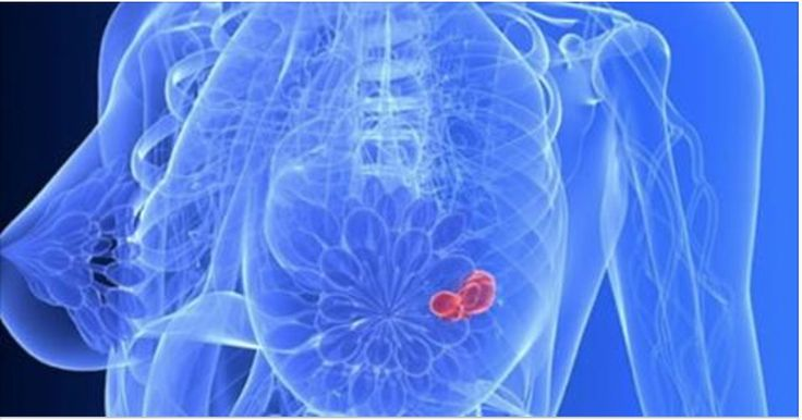 Os primeiros sinais do câncer de mama - e quais alimentos protegem você contra a doença! | Cura pela Natureza