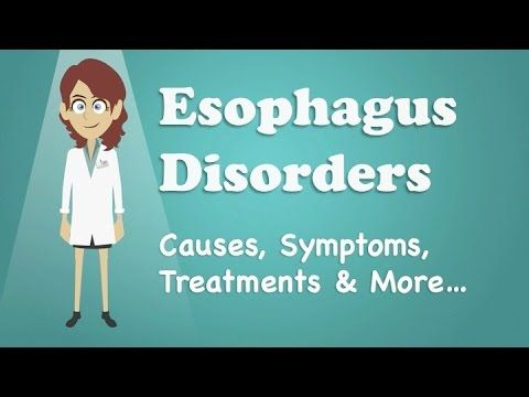 Esophagus Disorders - Causes, Symptoms, Treatments & More… - WATCH VIDEO HERE -> http://bestcancer.solutions/esophagus-disorders-causes-symptoms-treatments-more    *** gullet cancer causes ***   See much more honest health information at:  Rehealthify offers reliable, up-to-date health information, anytime, anywhere, for free. — video script below — The esophagus is the tube that carries food, liquids and saliva from your mouth to the...