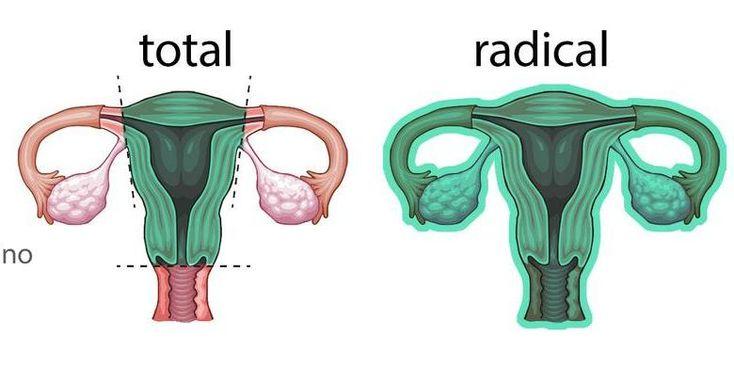 Histerectomía para el cáncer invasivo del cuello uterino