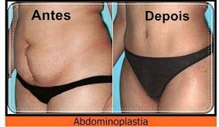 CIRURGIA PLÁSTICA DE BARRIGA - Veja como é feita a Abdominoplastia – VIDEO  http://mulhernaweb.blogspot.com.br/2016/10/veja-como-e-feita-abdominoplastia.html